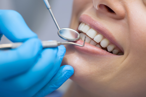 Preventive measures to maintain oral health (e.g. sealants, fluoridation).